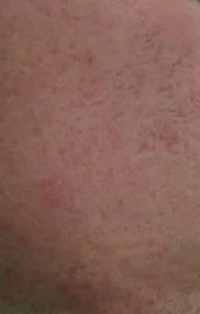 huidverbetering_micro_needling_acne_na