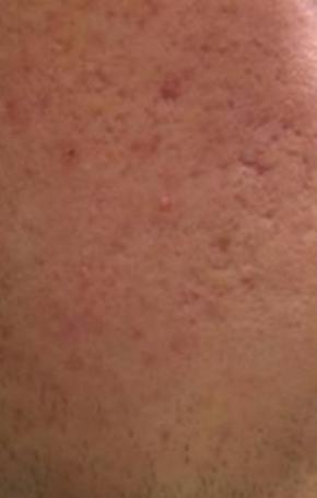 huidverbetering_micro_needling_acne_voor