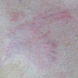 huidverbetering_micro_needling_brandwond_na