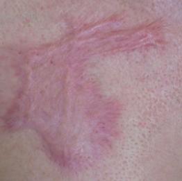 huidverbetering_micro_needling_brandwond_voor