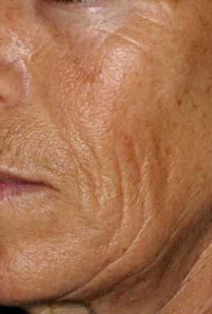 huidverbetering_micro_needling_hyperpigmentatie_voor