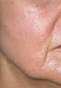 huidverbetering_micro_needling_after